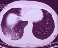 Pulmón CT, pulmonía Imágenes de archivo libres de regalías