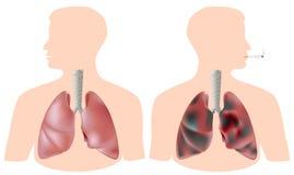 Pulmón del fumador (con el tumor) contra el pulmón sano Foto de archivo libre de regalías