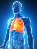 Pulmón masculino - cáncer Imagen de archivo libre de regalías