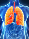 Pulmón masculino - cáncer Imagen de archivo