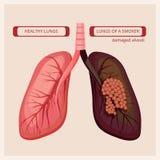 Pulmões do fumador Do vetor humano do câncer pulmonar de dano do fumo imagens infographic médicas ilustração do vetor
