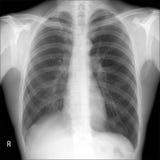 Pulmões do raio X: tuberculose direita do cargo do pulmão do lobectomy foto de stock