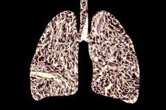 Pulmões do ` s do fumador, conceito médico, 3D ilustração, imagem conceptual da doença pulmonar ilustração do vetor