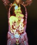 Pulmão penetrante do mediastinum do tumor do ct do animal de estimação Fotos de Stock Royalty Free