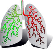 Pulmonary diagnostics Stock Photo