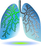 Pulmonary diagnostics Royalty Free Stock Image