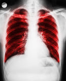 Pulmonary Disease. On Patient Lungs X-Ray royalty free stock photo