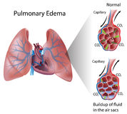 Pulmonary edema. Abnormal accumulation of fluid in air sacs impaires gas exchange, eps10 Stock Images