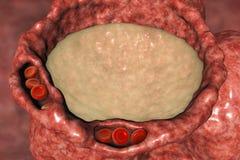 Pulmonary edema, close-up view of alveolus cross-section showing liquid in alveolus royalty free illustration