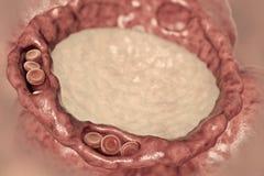 Pulmonary edema, close-up view of alveolus cross-section showing liquid in alveolus vector illustration