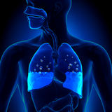 Pulmonary Edema - Water in Lungs. In detailed view Stock Photos