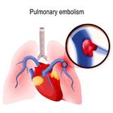 Pulmonary embolism. Human lungs and heart. Pulmonary embolism. Blockage of the main artery of the lung or one of its branches by a blood clot that has travelled Royalty Free Stock Photo