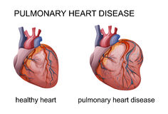 Pulmonary heart disease. Vector illustration of pulmonary heart disease. cardiology Stock Photos