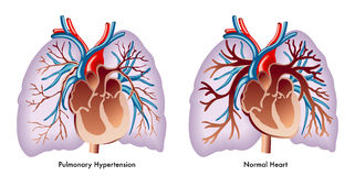 Pulmonary hypertension. Artwork depicting a pulmonary hypertension Stock Images