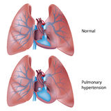 Pulmonary hypertension. With constricted lung vasculature and enlarged right heart ventricle, eps10 Stock Images