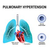 Pulmonary hypertension. Is an increased blood pressure within the arteries of the lungs. Cross section of the Normal, and narrowing of blood vessels. Humans Stock Photography