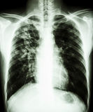Pulmonary tuberculosis. Film chest x-ray PA upright : show interstitial infiltration at right lung due to mycobacterium tuberculosis infection (Pulmonary royalty free stock photography