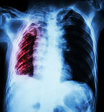 Pulmonary Tuberculosis. Chest X-Ray : Right lung atelectasis and infiltration and effusion  due to Mycobacterium Tuberculosis infection Royalty Free Stock Photo
