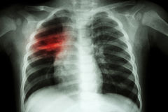 Pulmonary Tuberculosis ( Chest X-ray of child : show patchy infiltration at right middle lung ) Stock Images