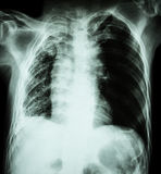 Pulmonary Tuberculosis .   Chest X-Ray : Right lung atelectasis Royalty Free Stock Photography