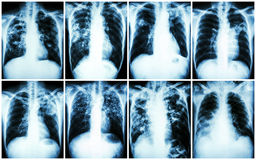 Pulmonary Tuberculosis Collection .  Chest X-ray : show patchy infiltration , interstitial infiltration , alveolar infiltration ,. Cavity , fibrosis at lung due Royalty Free Stock Photography