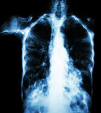 Pulmonary Tuberculosis. ( film chest x-ray :  interstitial infiltrate both lung due to Mycobacterium tuberculosis infection Royalty Free Stock Image