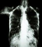Pulmonary Tuberculosis  ( film chest x-ray :  interstitial infiltrate both lung due to Mycobacterium tuberculosis infection ) Royalty Free Stock Images