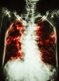 Pulmonary Tuberculosis . film chest x-ray of old patient show interstitial infiltration both lung and calcification at trachea  c Stock Photo