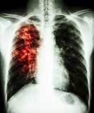 Pulmonary tuberculosis. Film chest x-ray PA upright : show interstitial infiltration at right lung due to mycobacterium tuberculosis infection (Pulmonary stock photo