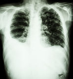 Pulmonary Tuberculosis. Film chest x-ray : Right pleural effusion and minimal left pleural effusion due to mycobacterium tuberculosis infection stock photo
