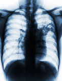 Pulmonary Tuberculosis . Film chest x-ray show alveolar infiltrate at left middle lung due to Mycobacterium tuberculosis infection.  Royalty Free Stock Images