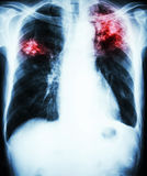 Pulmonary Tuberculosis. Film chest x-ray show alveolar infiltrate at left upper lung and right middle lung due to Mycobacterium tuberculosis infection (Pulmonary Stock Photos