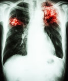 Pulmonary Tuberculosis. Film chest x-ray show alveolar infiltrate at left upper lung and right middle lung due to Mycobacterium tuberculosis infection (Pulmonary Royalty Free Stock Images