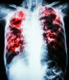 Pulmonary Tuberculosis. Film chest x-ray show cavity at right lung,fibrosis & interstitial & patchy infiltrate at both lung due to Mycobacterium tuberculosis royalty free stock photos