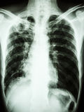 Pulmonary Tuberculosis. Film chest x-ray show cavity at right upper lung due to Mycobacterium tuberculosis infection (Pulmonary Tuberculosis royalty free stock photos