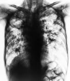 Pulmonary Tuberculosis . Film chest x-ray show fibrosis,cavity,interstitial infiltration both lung due to Mycobacterium tuberculos. Is infection Royalty Free Stock Photos