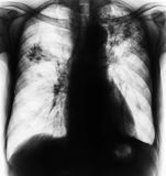 Pulmonary Tuberculosis . Film chest x-ray show fibrosis , interstitial infiltration both lung due to Mycobacterium tuberculosis infection Stock Images