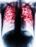 Pulmonary Tuberculosis . Film chest x-ray show fibrosis , interstitial infiltration both lung due to Mycobacterium tuberculosis infection Stock Image