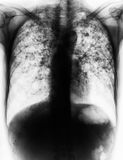 Pulmonary Tuberculosis . Film chest x-ray show fibrosis , interstitial infiltration both lung due to Mycobacterium tuberculosis infection Stock Photography