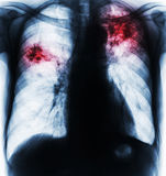 Pulmonary Tuberculosis . Film chest x-ray show fibrosis , interstitial infiltration both lung due to Mycobacterium tuberculosis infection Royalty Free Stock Image
