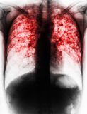 Pulmonary Tuberculosis . Film chest x-ray show fibrosis , interstitial infiltration both lung due to Mycobacterium tuberculosis infection Stock Photo