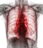 Pulmonary Tuberculosis . Film chest x-ray show interstitial infiltrate both lung due to Mycobacterium tuberculosis infection.  Royalty Free Stock Photography