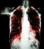 Pulmonary Tuberculosis  ( film chest x-ray :  interstitial infiltrate both lung due to Mycobacterium tuberculosis infection ) Royalty Free Stock Image
