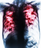 Pulmonary Tuberculosis . Film chest x-ray show fibrosis,cavity,interstitial infiltration both lung due to Mycobacterium tuberculos Royalty Free Stock Image