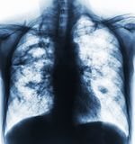 Pulmonary tuberculosis . Film x-ray of chest show cavity at right lung and interstitial infiltrate both lung due to TB infection.  stock photos