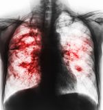 Pulmonary tuberculosis . Film x-ray of chest show cavity at right lung and interstitial infiltrate both lung due to TB infection.  royalty free stock photography
