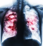 Pulmonary tuberculosis . Film x-ray of chest show cavity at right lung and interstitial infiltrate both lung due to TB infection Stock Photos