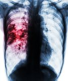 Pulmonary tuberculosis . Film x-ray of chest show patchy infiltrate at right lung due to TB infection Royalty Free Stock Photo