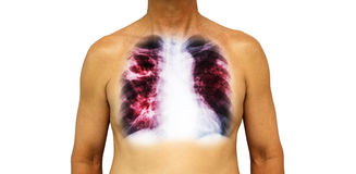Pulmonary tuberculosis . Human chest with x-ray show cavity at right upper lung and interstitial infiltrate both lung due to infec. Tion . Isolated background Stock Photos