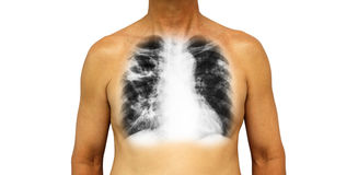 Pulmonary tuberculosis . Human chest with x-ray show cavity at right upper lung and interstitial infiltrate both lung due to infec. Tion . Isolated background Stock Images